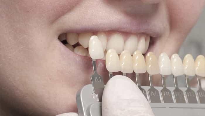 치아 미백
